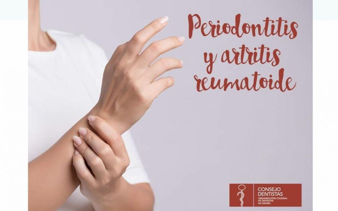 Periodontitis, Artritis reumatoide
